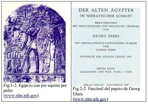 Egipcio con pie equino por polio y Fascímil del papiro de Georg Ebers
