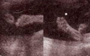 Trimomia 18 (síndrome de edwars)
