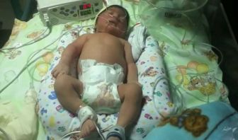 Convulsiones Neonatales