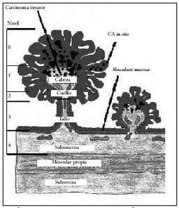 Lesiones polipoides según Haggit