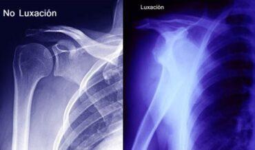 Luxación del hombro