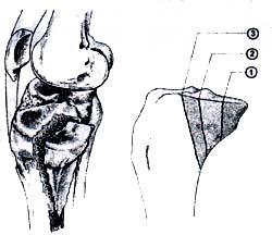 Clasificación de la fractura posteromedial del platillo tibial