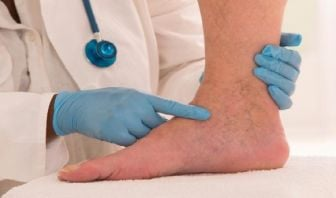 Tratamiento de la Flebitis