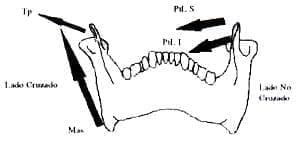 Temporal posterior y Masetero