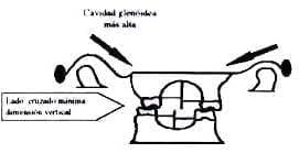 Morfología de la cavidad glenóidea