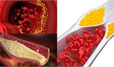 Hiperlipoproteinemias