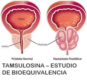 puede luchar por caca y causar problemas de próstata