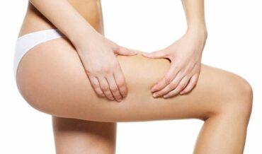 Celulitis - Cómo combatirla