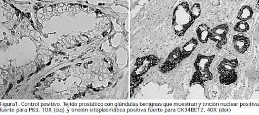 Tejido prostático con glándulas benignas