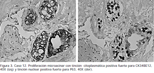 Proliferación microacinar con tinción