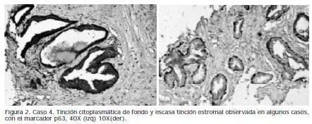 Tinción citoplasmática de fondo y escasa tinción estromal, Caso tinción, Biopsias de Próstata