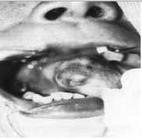 Isquemia Inicial, Malformaciones Arteriovenosas