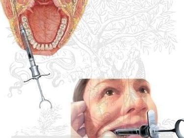 Ramas Terminales de los Nervios Dentarios