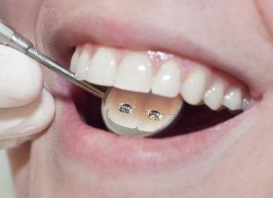 Ortodoncia del Siglo XXI
