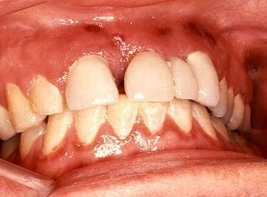 Sarcoma de Kaposi intraoral