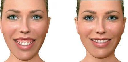 Cirugía Ortognatica de Maxilar Superior