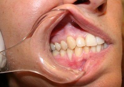 Enfisema Subcutáneo Cervicofacial