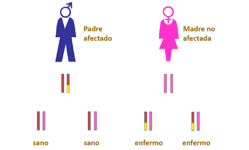 La mitad de los Cánceres de mama de Origen Genético son Herencia Paterna