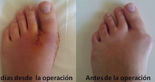 impotencia después de la cirugía del dedo gordo