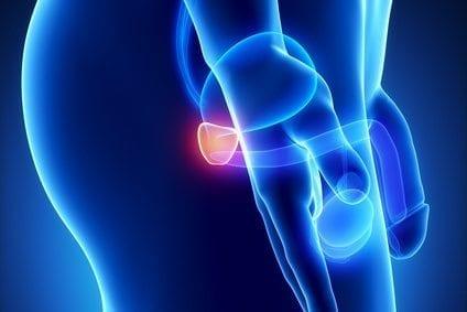 Genes Fusionados podrían suscitar los Tumores de Próstata