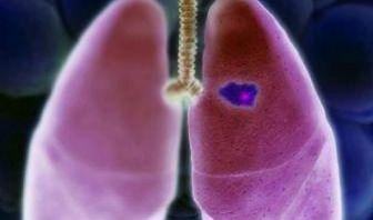 Genes Inflamatorios aumentan el riesgo de Cáncer de Pulmón