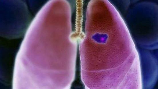Genes Inflamatorios aumentan el riesgo de Cancer de Pulmon
