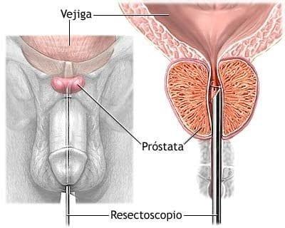 relaciones sexuales después de la radiación de próstata