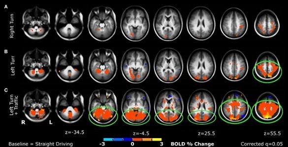 Cierta Lesión de Rodilla estaría ligada a Alteración Cerebral