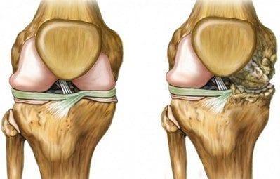 Osteoporosis: Fisiopatología