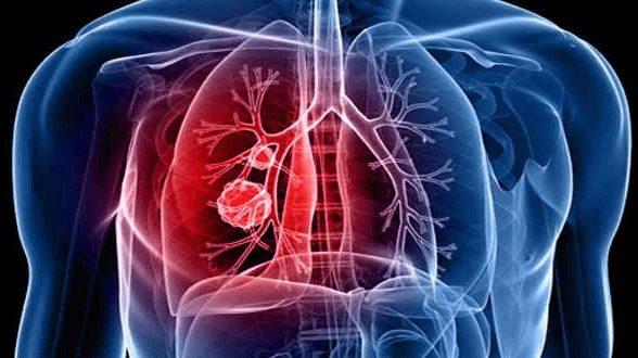 Tratamiento Hormonal podría reducir los Tumores de Pulmón