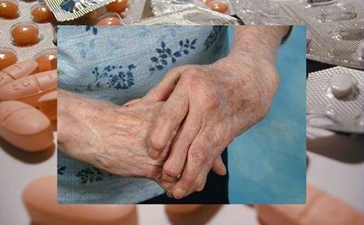 Tratamiento Artritis Reumatoide
