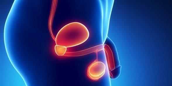 Tumor de Próstata