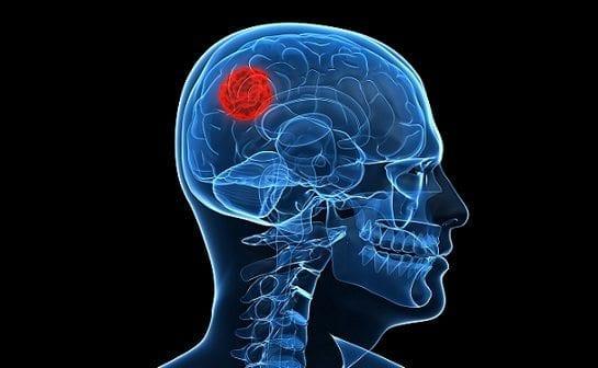 Las alergias protegerían contra cierto tipo de cáncer cerebral
