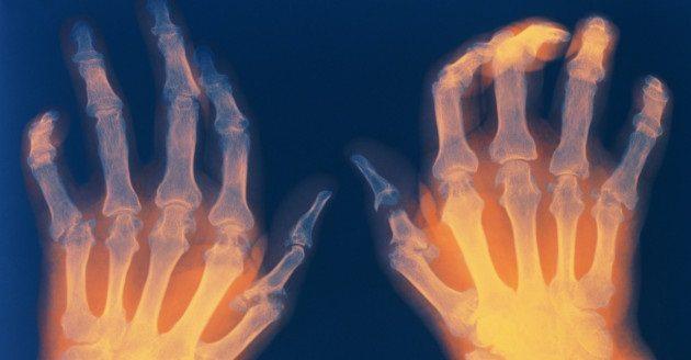 Compuestos de Anémonas y de un Arbusto Combaten la Artritis Reumatoide