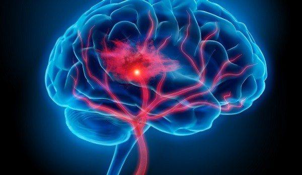 Anticoagulante con Sangrado Cerebral