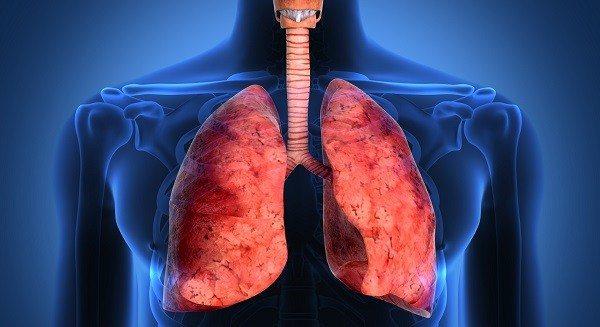 Base Genética de la Fibrosis Pulmonar