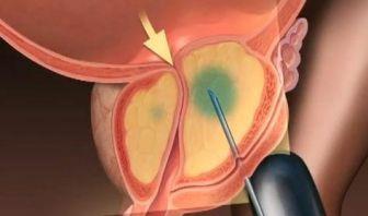 Cambio en la biopsia del cáncer de próstata