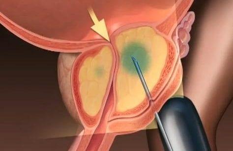 Cómo mantener el saneamiento de la vejiga y la próstata