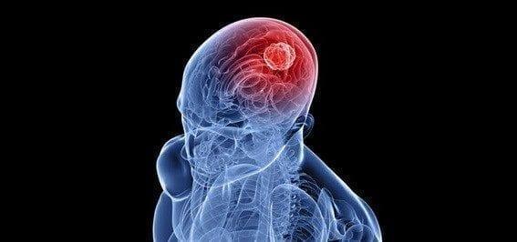 Prueba Sanguínea para detectar Tumores Cerebrales