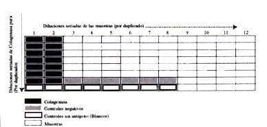 Diagrama del Montaje en la Prueba de Elisa