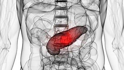 Flujo Sanguíneo en el Cáncer de Páncreas