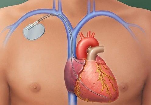 Un medicamento y un marcapasos combaten la arritmia cardiaca