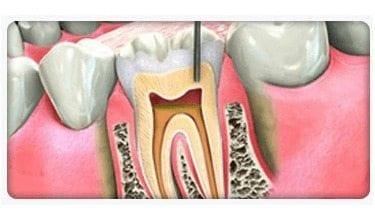Pacientes con periodontitis