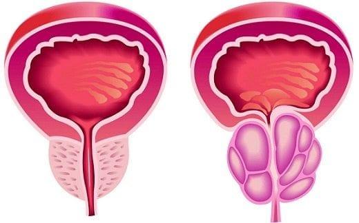 después de la biopsia de próstata puede tomar los efectos secundarios de viagra
