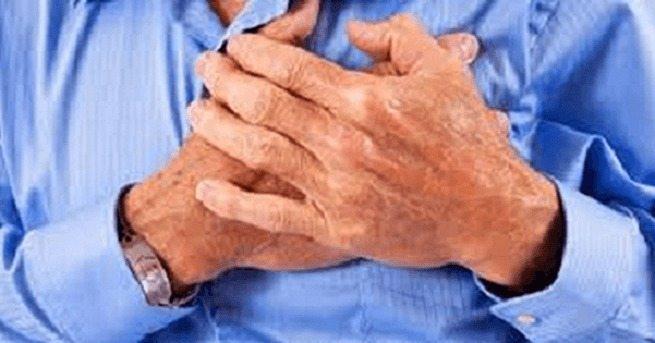 Psoriasis es un Factor de Riesgo Independiente de IAM