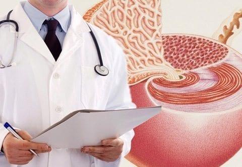 APE y Cáncer de Próstata