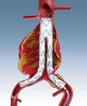 Aneurismas Aórticos Endovascular