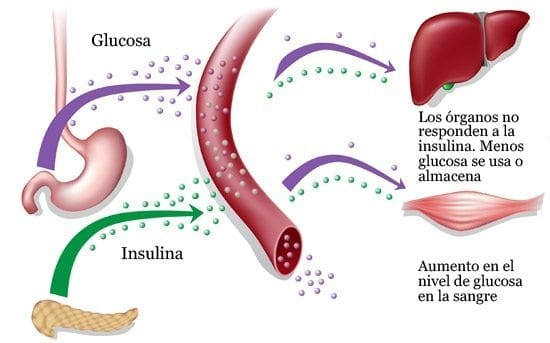 enfermedad de Creutzfeldt-Jakob posible cura para la diabetes