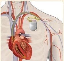 Desfibrilador Implantado