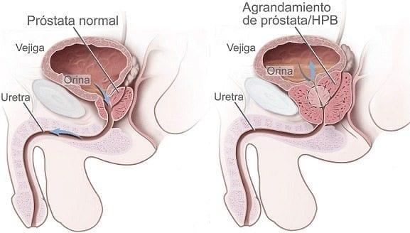 Evaluación del Cáncer de Próstata
